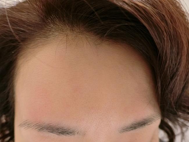 顔脱毛直後の肌の赤み