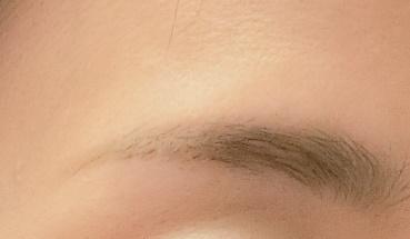 眉毛脱毛後のアフター画像