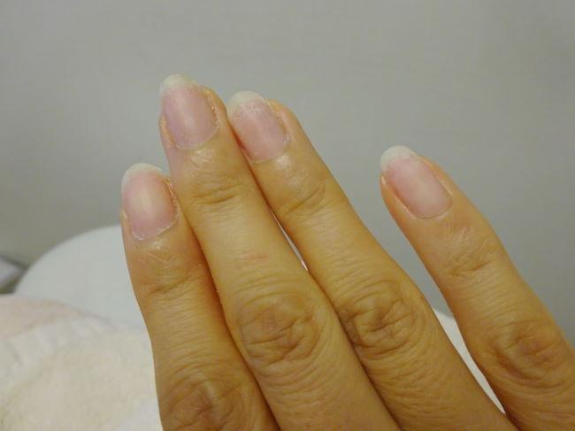 パラジェルで爪の乾燥が改善