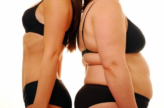 皮下脂肪の多い女性