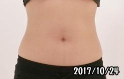 シックスパッド腹筋の筋トレ効果(スタート時)女性