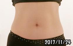 シックスパッド腹筋の筋トレ効果(1ヶ月後)女性
