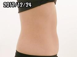 シックスパッド腹筋の筋トレ効果(2ヶ月後)女性